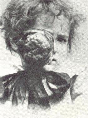 imagem: in History of ophthalmology [foto 1885]